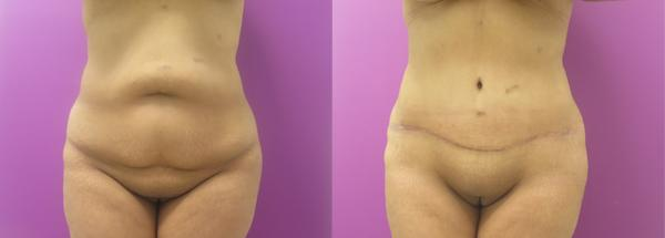 fotos antes y después en Long Island City, NY, Abdominoplastia en Chicago, IL